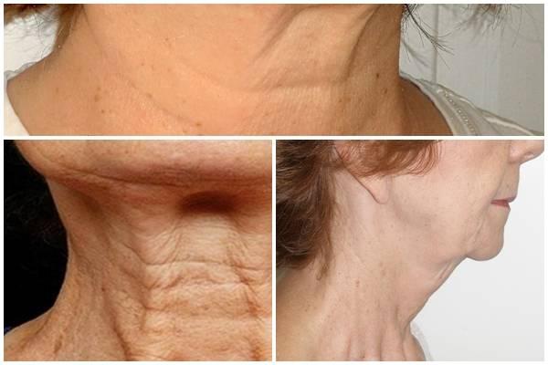 Phẫu thuật căng da cổ là gì? Quy trình thực hiện như thế nào?