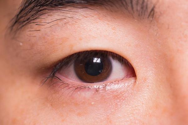 Mụt lẹo sinh ra do mi mắt bẩn